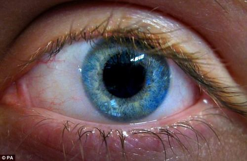 Glaucoma is a severe eye problem which affects 600,000 people in Britain (stock photograph)