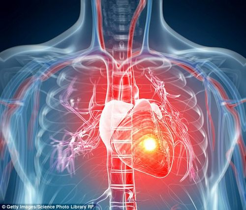 Other heart attack symptoms can include unusual fatigue, shortness of breath, coughing, feeling sick and vomiting (stock picture)