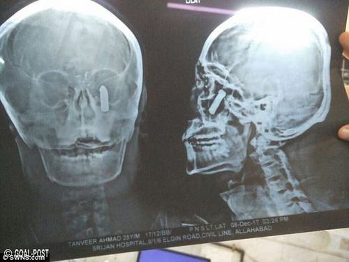X-ray scans also reveal exactly where the bullet became stuck in the man's face - which allowed surgeons to consider their options for removing it