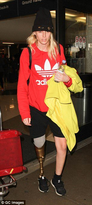 She now sports a gold prosthetic leg