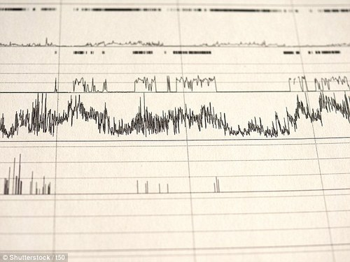 An EKG shows ttwo parts of the brain generate coordinating sleep waves to produce dreams
