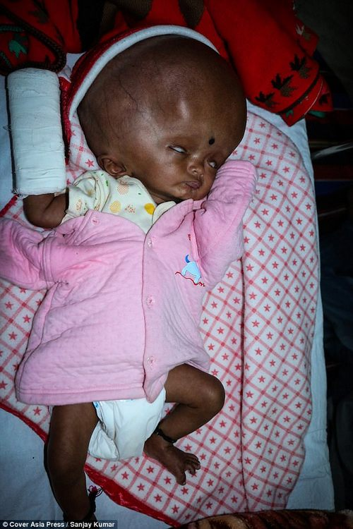 Ankit, who weighs 15lbs (7kg), is currently in hospital recovering with his parents by his side