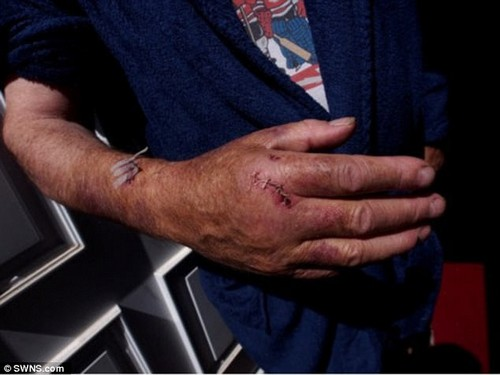 During the same incident Harrison was hit by the teenager with a piece of wood studded with nails and was left bleeding