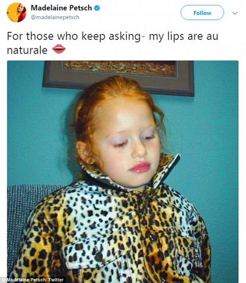 Hitting back: Madelaine took to Twitter in January to hit back at speculation that her perfect pout may be the result of fillers