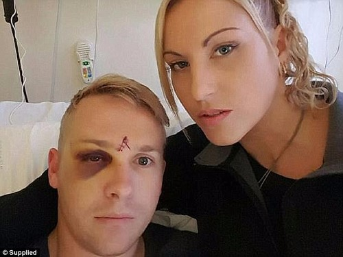 Mr Yeoman suffered a fractured eye socket and nerve damage and he and his wife say they are 'different people' since the invasion (pictured with his wife Shereen)