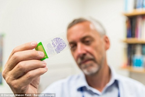 Professor Steve Gentleman (pictured) dissects brain tissue samples to look at their make up