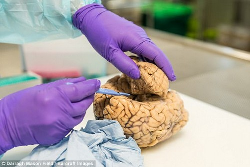 The brain bank specialises in Parkinson's, in the hope of improving treatment options