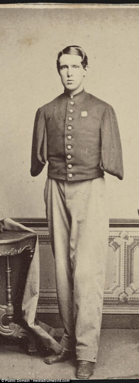 Sergeant Alfred A. Stratton of Co. G, 147th New York Infantry Regiment, with amputated arms
