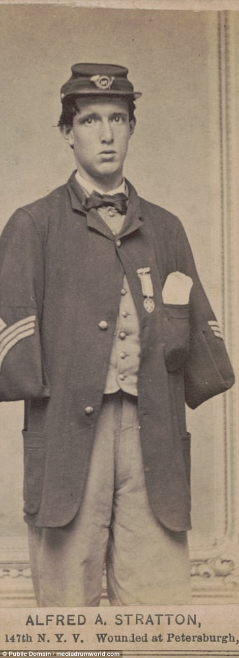Alfred A. Stratton of Co. G, 147th New York Infantry Regiment in uniform, with amputated arms