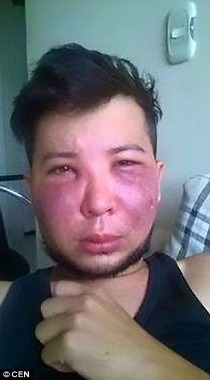 Jerson Trujillo, 28, went under the knife in his quest to look like a woman - but the procedure went hideously wrong
