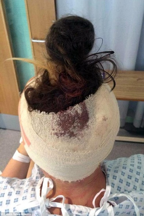 Miss Hughes, from Walsall, was rushed for emergency surgery after her optician noticed damage to her optic nerve. Surgeons sliced open her skull and inserted a shunt to drain dangerous levels of fluid away from her brain