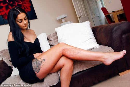 Aimee Montgomery, who was 19 at the time, ended up with a huge scar on her right leg (pictured)