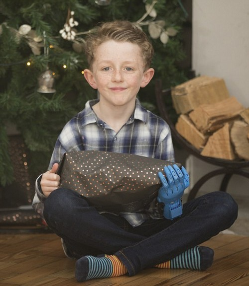 His mother, Kelly, said Josh learnt to do things without his hand and chose to let him decide about getting a prosthetic arm when he was older