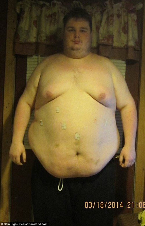 The way he was:Sam has lost more than half his body weight, dropping to 200 lbs (14st 4lbs), and trading his 60in waist for 36in (pictured here before his weight loss in March 2014)