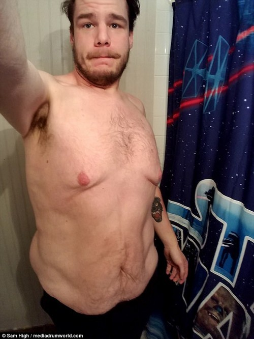'It's a burden': Despite his impressive weight loss, Sam has been left with mounds of excess skin which he admits is one of his 'biggest hindrances'