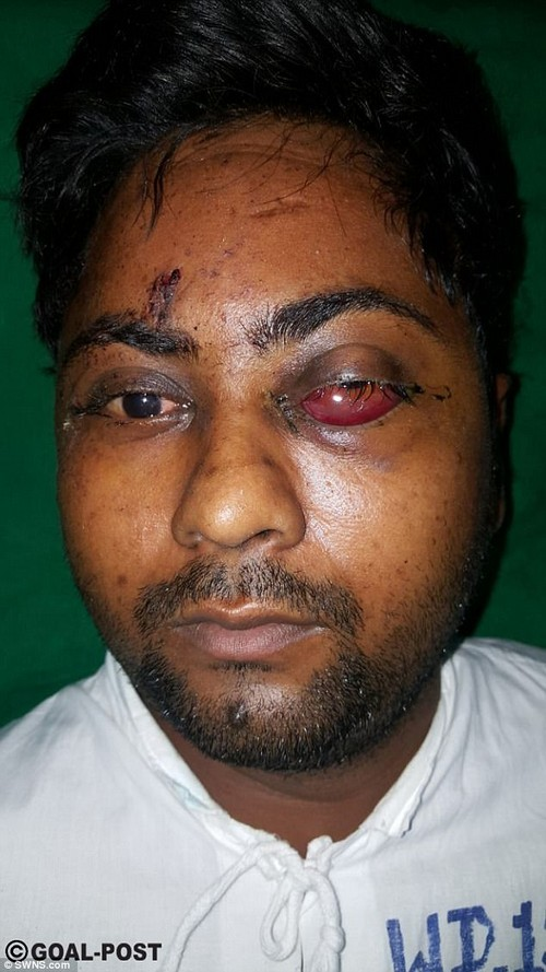 Tanveer Ahmed Ansari, 23, was shot in the face earlier this month when he was the victim of a robbery, but incredibly it didn't kill him. He was left blind